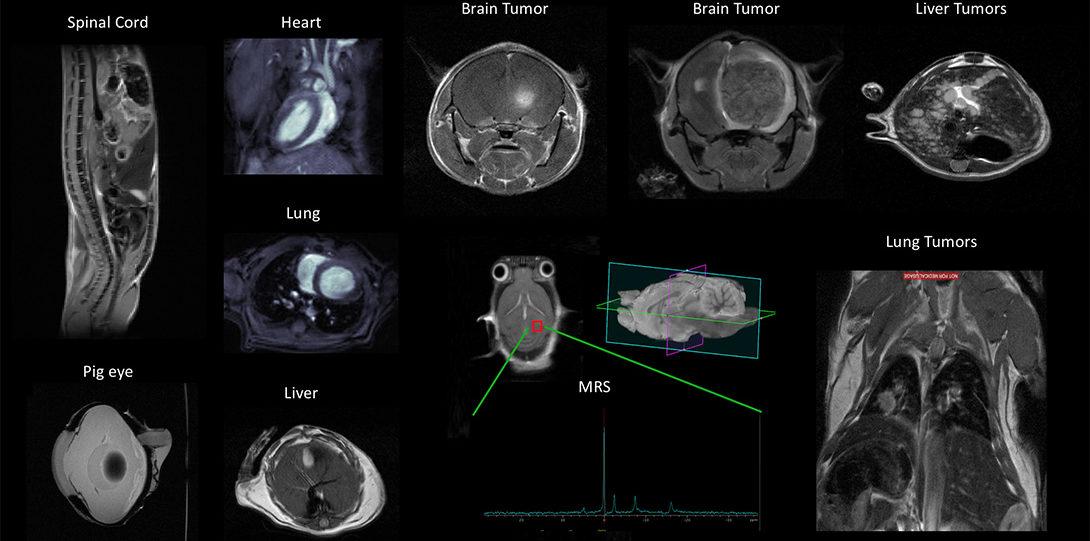 MRI of various organs